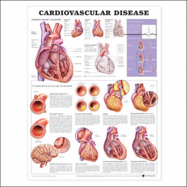 Cardiovascular Disease Anatomical Chart - Charts - Models